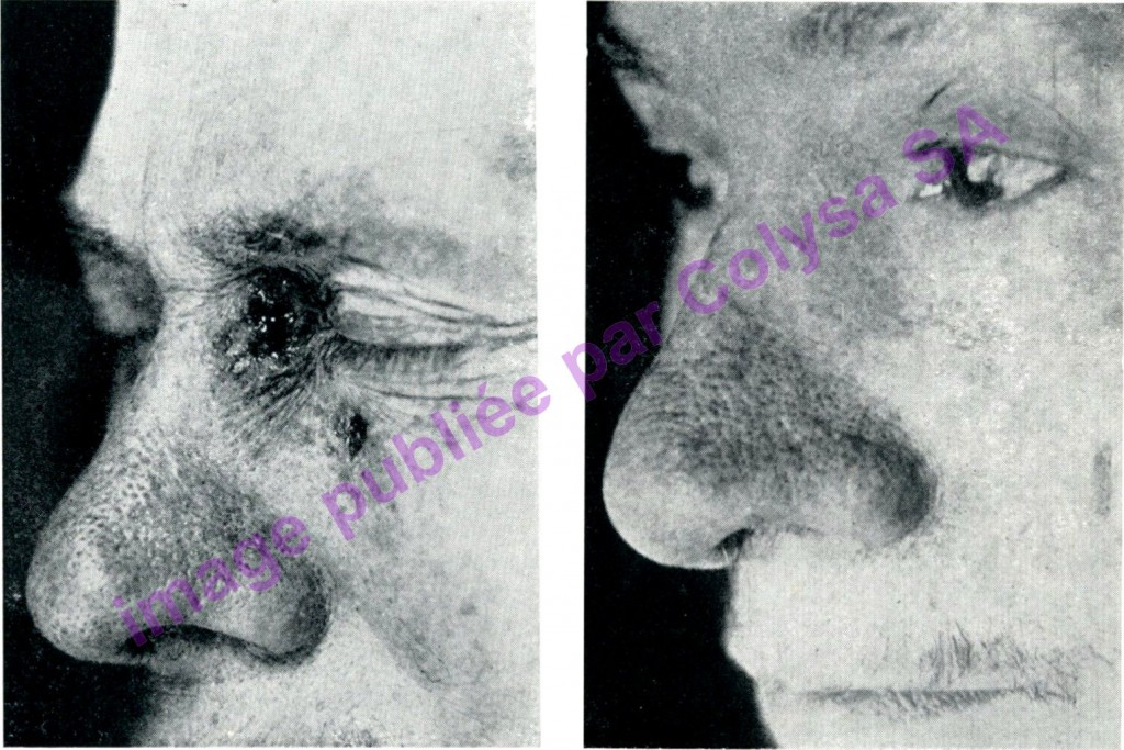 Tumeur de l'angle de l'oeil et sous orbitaire